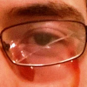 bleedin' eye